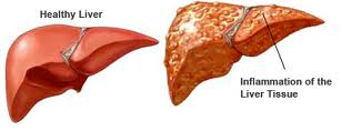 Elevated LFTs- Liver Function Tests